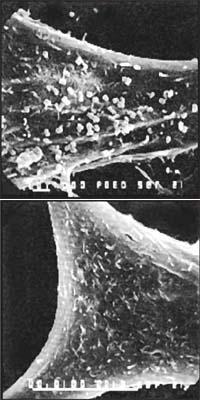 Рис. 5. Нанобы, облепившие фибробласт (внизу – контроль)