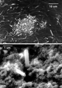 Рис. 8. Нанобы в минеральной (а) и органической (б) частях склеротической бляшки при полной блокаде артерии